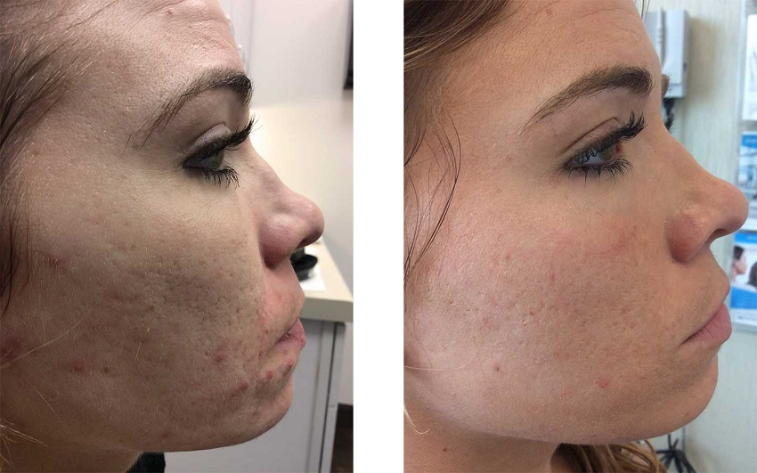 benefits of using ice on face