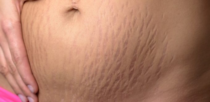 eliminate stretch marks